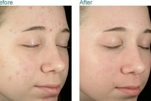 Obagi Clenziderm Before & After - 4 weeks