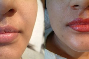 Before & After Semi-permanent Makeup for the Lips